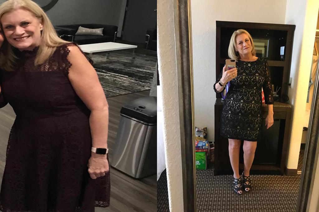 Ellen G Calotren Before & After Pics