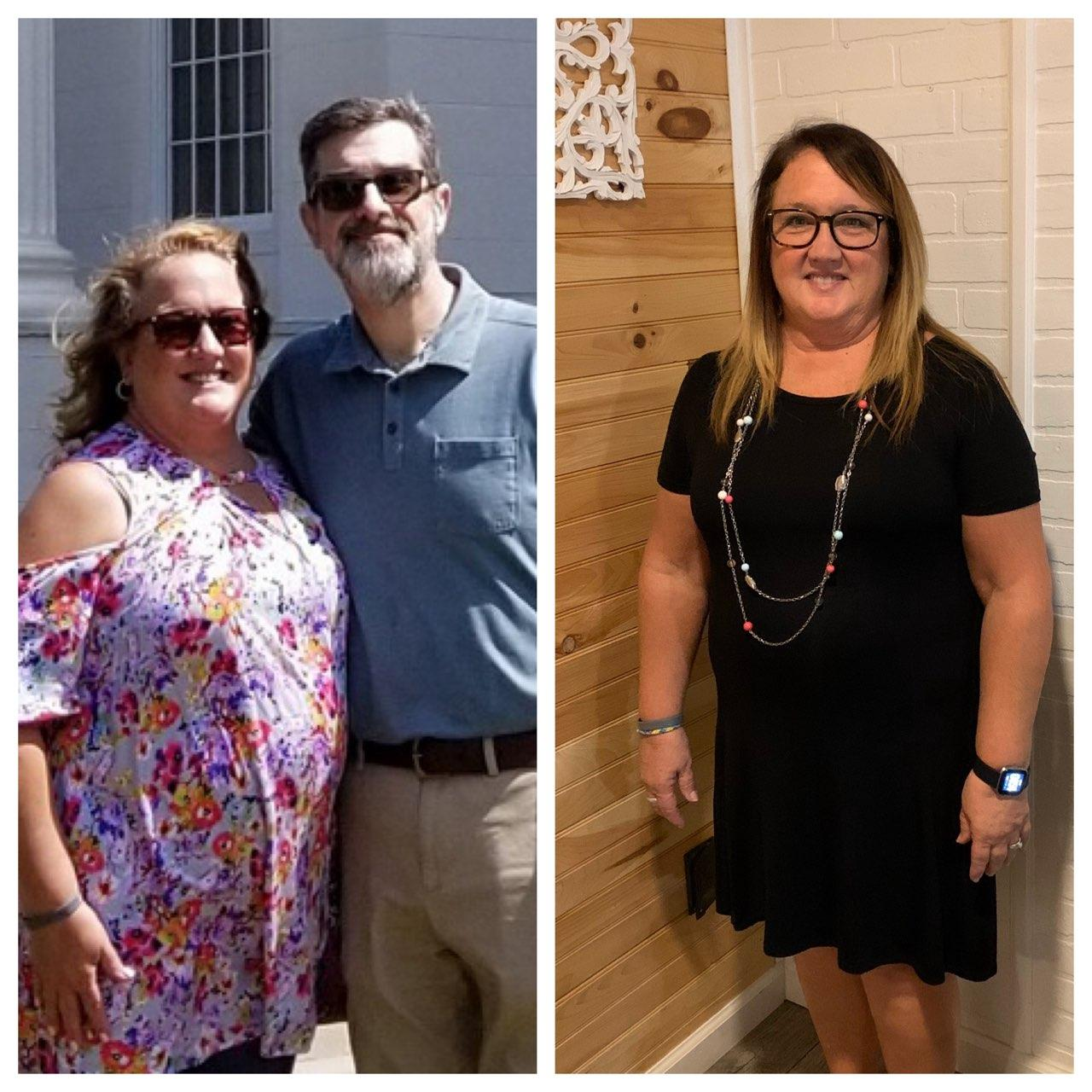 Pam Cason Before-After-1